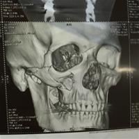 Михаил Шаламов: «Четверной перелом всяких костей со смещением обломков»